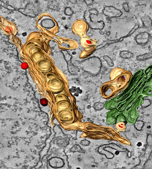 Фото №3 - Ссылка в инфекционное отделение