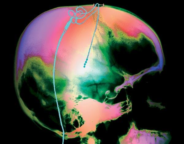 Фото №1 - Интерфейс для головного мозга