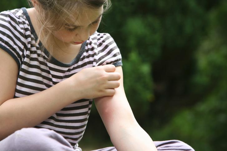 Фото №1 - Сыпь у ребенка: лечим кожу снаружи и изнутри