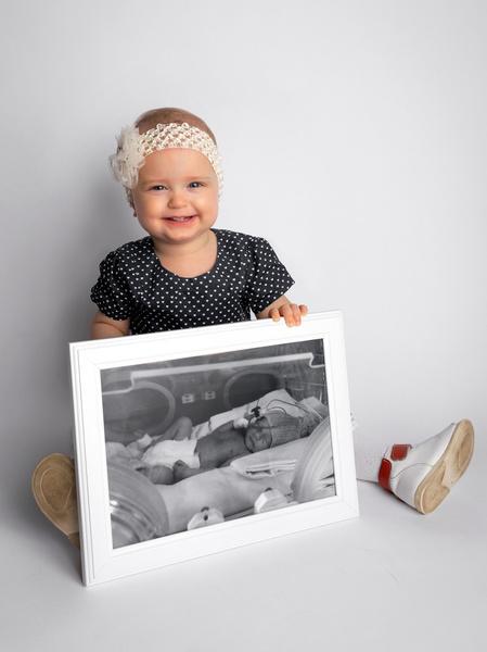 Фото №5 - Недоношенные детки сразу после рождения и спустя годы: фото