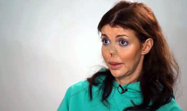 Фото №1 - «Живот разрезан вдоль, лица нет»: Казьмина дала откровенное интервью о всех своих болезнях