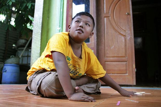 Фото №6 - Ребенок в 2 года курил по 40 сигарет в день: что с ним стало