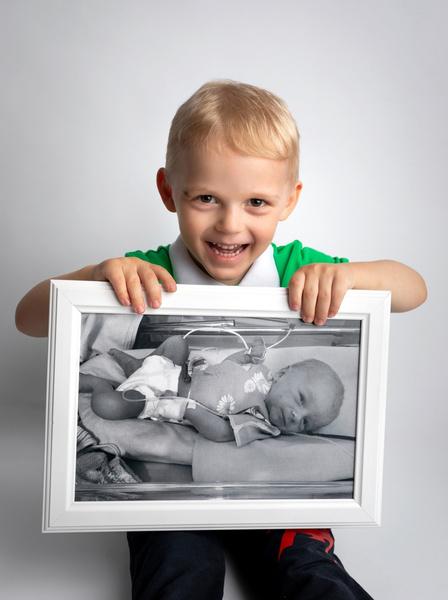 Фото №4 - Недоношенные детки сразу после рождения и спустя годы: фото