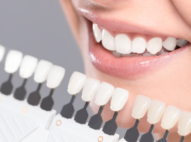 Фото №2 - Маркер здоровья: о чем может рассказать цвет зубов