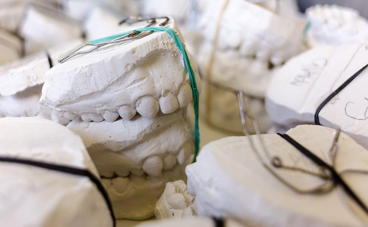 Фото №3 - «Только 52 зуба нам даются бесплатно». Современные возможности протезирования и имплантации
