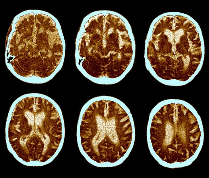 Фото №1 - Разработан препарат против болезни Альцгеймера