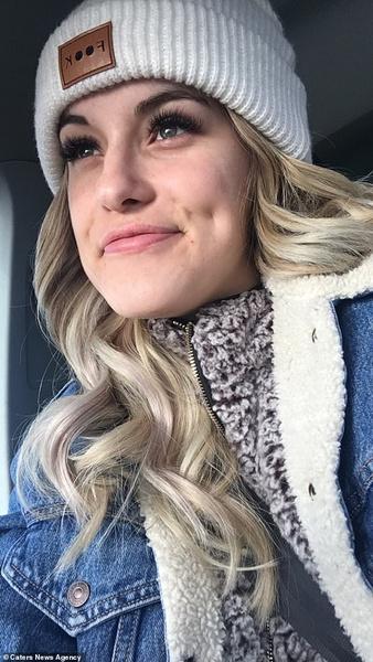 Фото №1 - Аллергия на зиму: из-за какой болезни девушка не может долго находиться на морозе