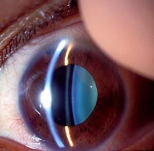 Фото №1 - Глаза расскажут о возрасте