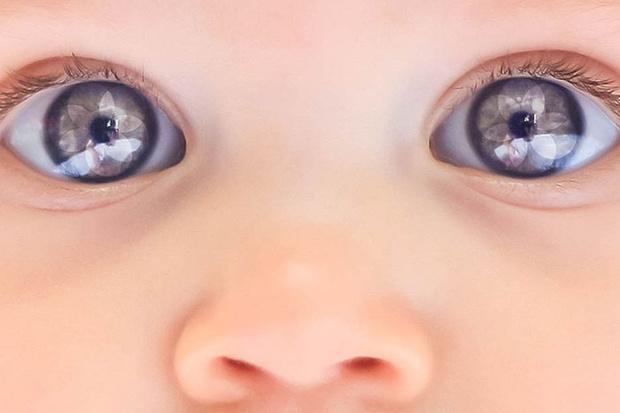 Фото №1 - Цвет глаз новорожденного