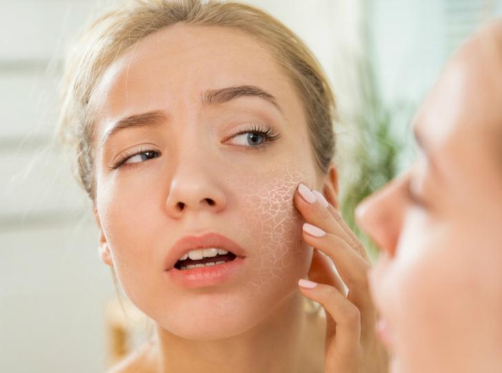 Фото №4 - Как ваша психика влияет на здоровье кожи