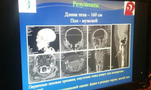 Фото №1 - В Эрмитаже рассказали, как врачи поставили диагноз мумии из Египта