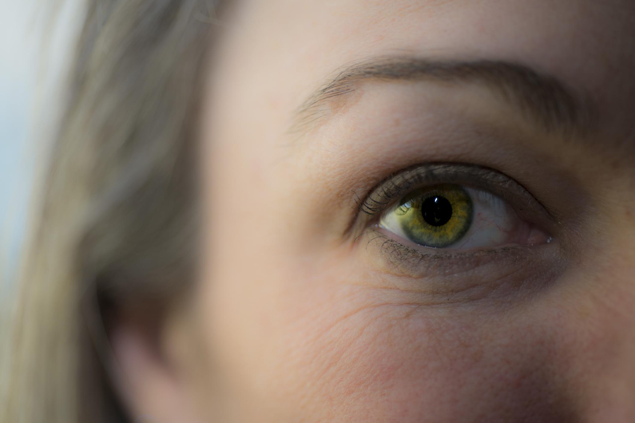 Серо жёлтый цвет глаз