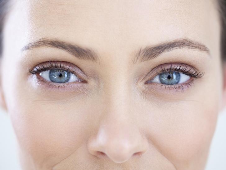 Фото №2 - С широко раскрытыми глазами: 5 заблуждений о блефаропластике