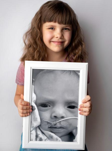 Фото №1 - Недоношенные детки сразу после рождения и спустя годы: фото