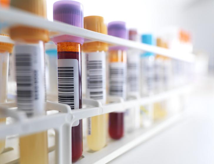 Фото №1 - Медики научились определять рак легких по анализу крови
