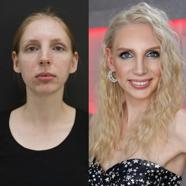 Фото №3 - Как изменились участницы шоу «Перезагрузка»: фото до и после