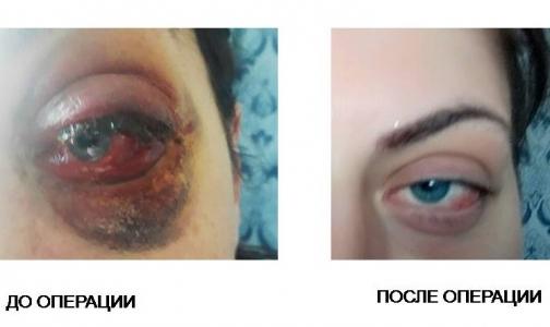 Фото №1 - Петербургские врачи спасли молодую женщину от инвалидности и сохранили зрение