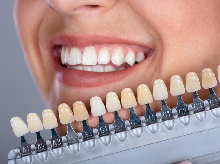 Фото №4 - 6 вопросов и ответов, которые заменят консультацию у стоматолога