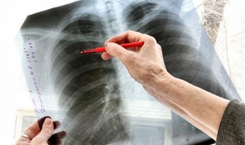Фото №1 - Прокуратура хочет заставить петербурженку с заразной форма туберкулеза лечиться