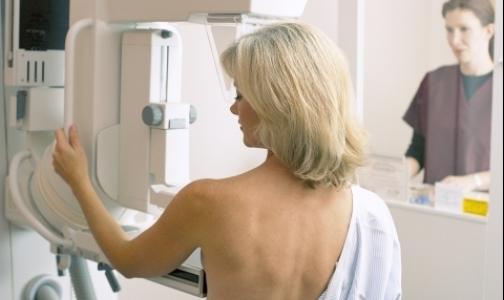 Фото №1 - Выявлять рак груди в Петербурге будут на новых маммографах