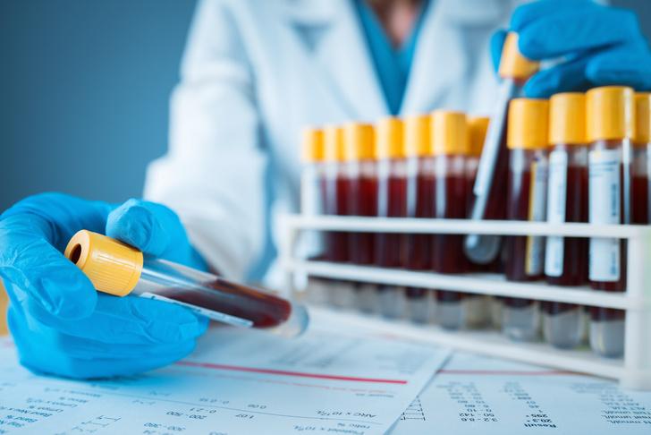 Фото №2 - По клеточкам: какие исследования крови нужно делать в первую очередь