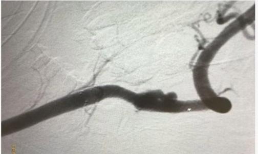 Фото №1 - Причиной трех инсультов у подростка оказалась аневризма