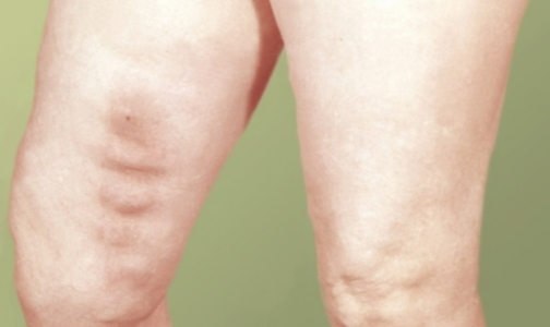 Фото №1 - Новый препарат защитит от венозного тромбоза