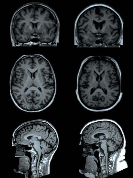 Фото №1 - Ученые оценили влияние ожирения на работу мозга