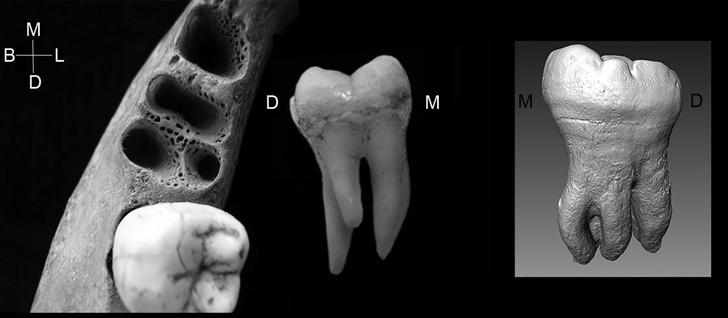 Фото №1 - Зубы с тремя корнями достались жителям Азии от денисовцев