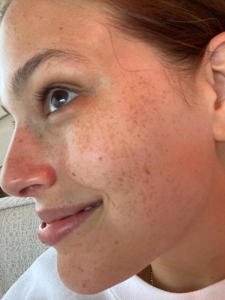 Фото №3 - Пигментация и отвисший живот: Эшли Грэм на фото без ретуши
