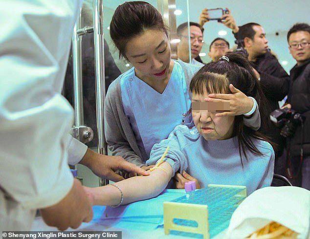 Фото №2 - Китайская девочка из-за редкой болезни в 15 лет выглядела как старушка, но пластическая операция все исправила (фото)