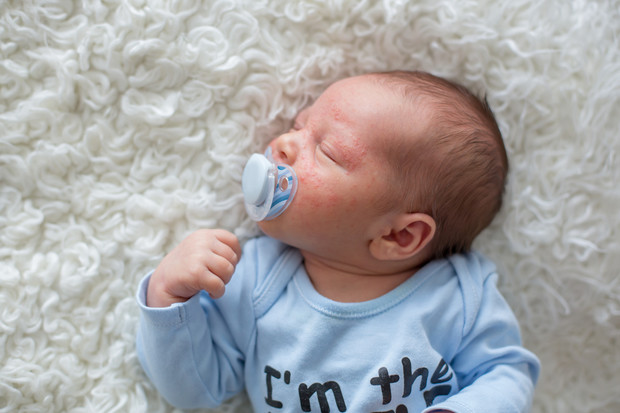 Фото №1 - У ребенка сыпь: когда срочно нужен врач