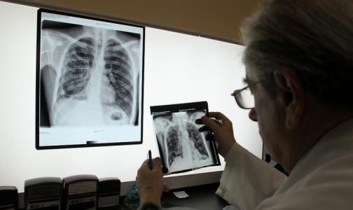 Фото №1 - Петербургские врачи предложили лечить туберкулез методом «кнута и пряника»