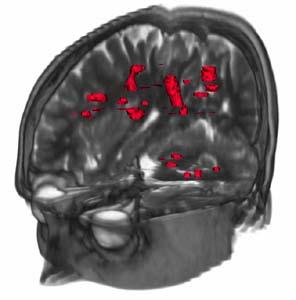 Фото №1 - Стволовые клетки помогут лечить склерозы и артриты