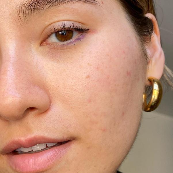 Фото №3 - Как избавиться от постакне: 5 советов для проблемной кожи