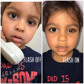 Посмотрите в глаза: рак у ребенка можно распознать по фото