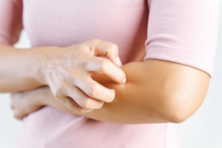 Фото №4 - Волдыри, бугорки, воспаления: что мы знаем о «коронавирусных» пальцах?