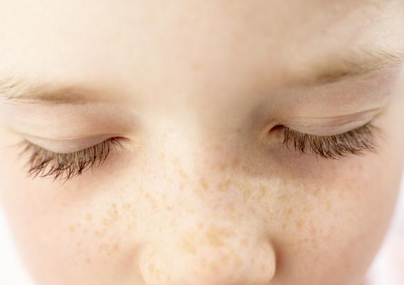 Фото №1 - Пигментные пятна у детей: родинки, гемангиомы и веснушки
