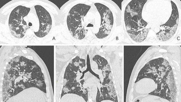 Фото №1 - Как выглядят пораженные коронавирусом легкие на рентген-снимке