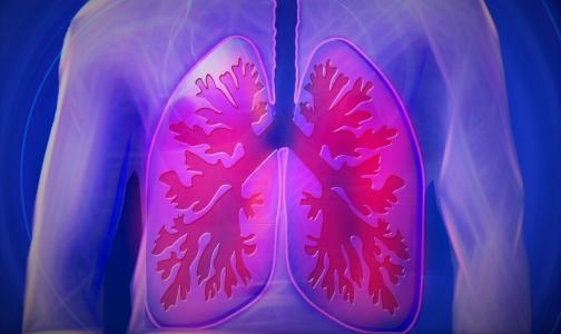 Фото №1 - В Роспотребнадзоре объяснили, какими бывают внебольничные пневмонии