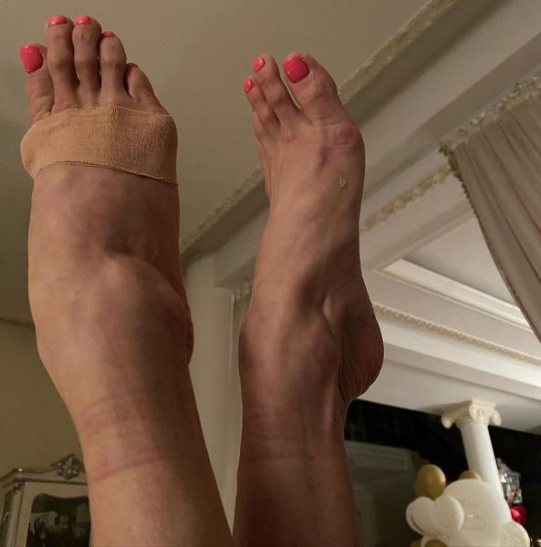Волочкова ужаснула подписчиков измученными «пальцами балерины» на ногах: фото