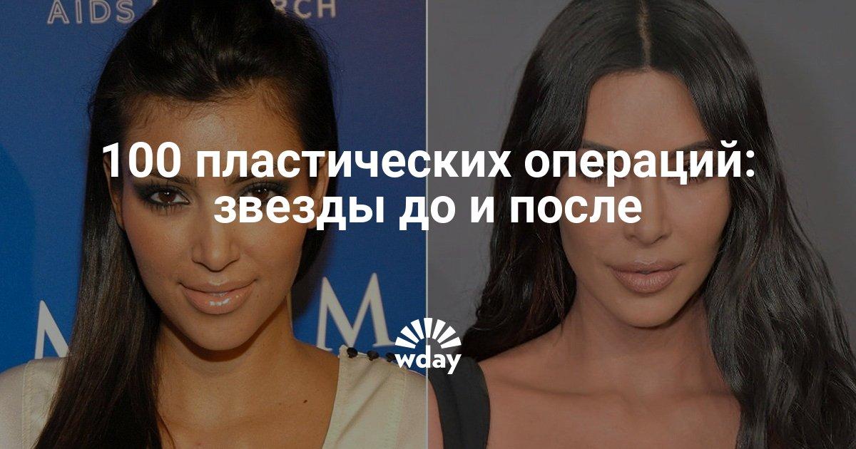 Пластические операции звезд: фото до и после