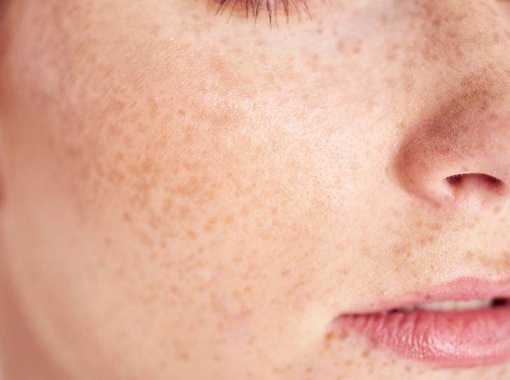 Фото №8 - Молода и прекрасна: как мы незаметно старим кожу
