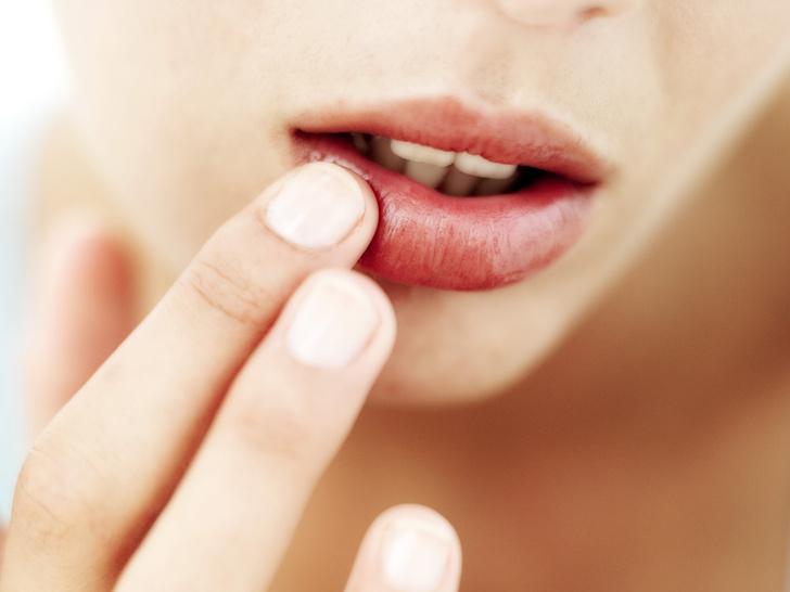 Фото №1 - Полный гид по уходу за кожей губ: правила, советы и частые ошибки
