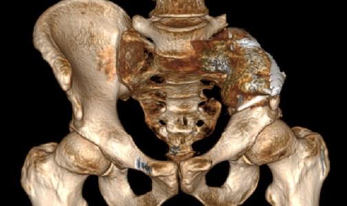Фото №1 - В НМИЦ онкологии поставили на ноги петербуржца с остеосаркомой через 4 дня после операции