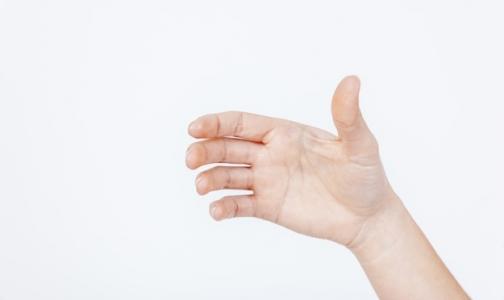 Фото №1 - Сколько в России пациентов с псориазом и как их лечат