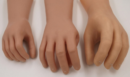 Фото №1 - Российские инженеры создали универсальный протез кисти руки. Он гораздо дешевле импортных аналогов
