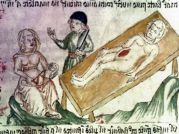 Фото №3 - Страшнее чумы: как принимали роды в Средневековье