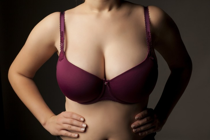 Фото №8 - Не полной грудью: почему женщины уменьшают бюст и как это влияет на их жизнь