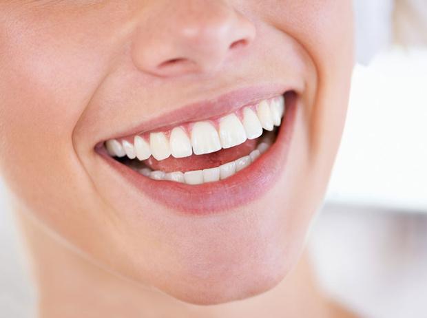 Фото №3 - Все, что стоит знать об отбеливании зубов